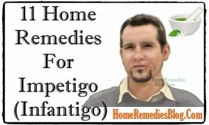 11 Home Remedies For Impetigo (Infantigo)
