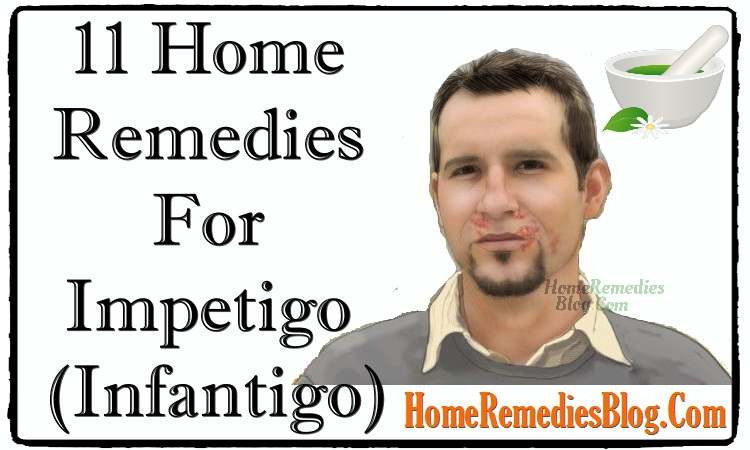 11 Home Remedies For Impetigo (Infantigo)