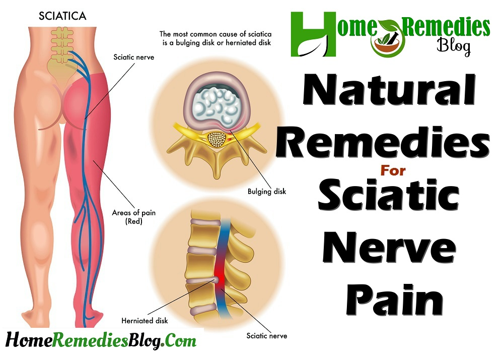 12 Natural Remedies For Sciatica And Nerve Pain Home Remedies Blog