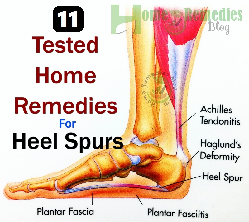 11 natural home remedies for heel spur