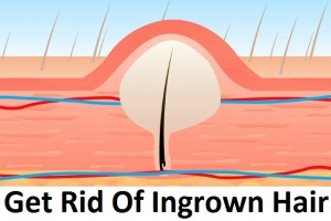 How To Get Rid of Ingrown Pubic Hair (Home Remedies)