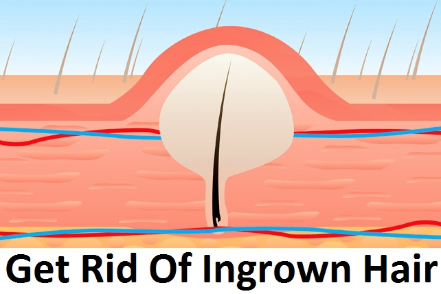 How To Get Rid of Ingrown Pubic Hair