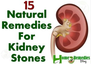 15 Natural Remedies For Kidney Stones With Diet Plan