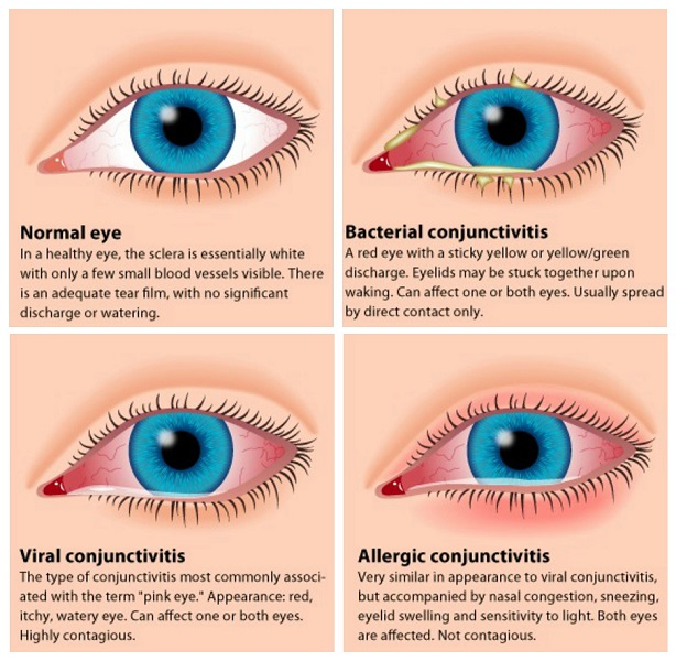 Pink Eye Types - Viral, Bacterial, And Allergic Pink Eye