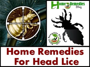 15 Best Home Remedies For Head Lice and Nits