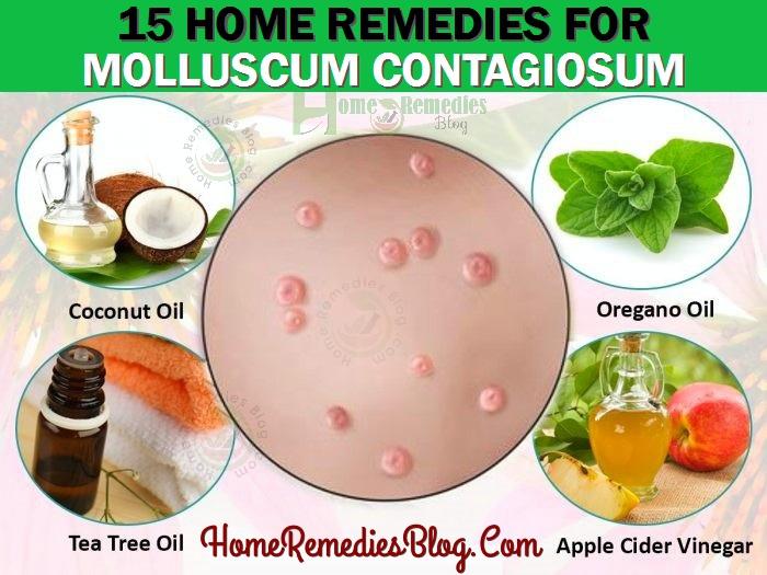 15 Home Remedies For Molluscum Contagiosum Natural Treatment Home