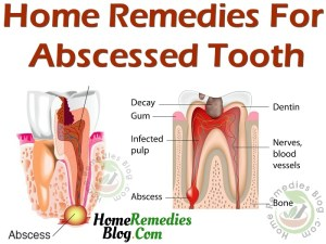 15 Effective Home Remedies For Abscess Tooth