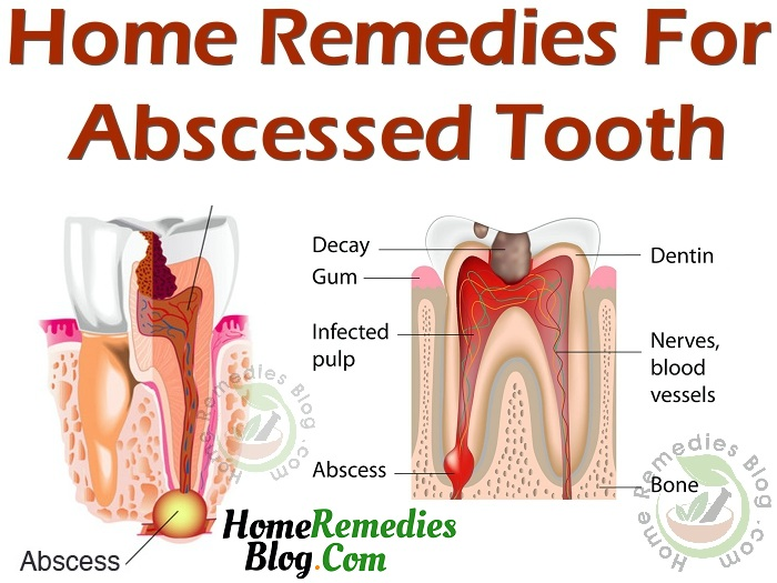 Home Remedies For Toothache After Root Canal