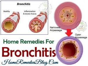14 Home Remedies for Bronchitis Effective Treatment