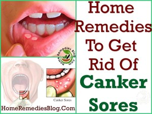 Home Remedies To Get Rid of Canker Sores Fast