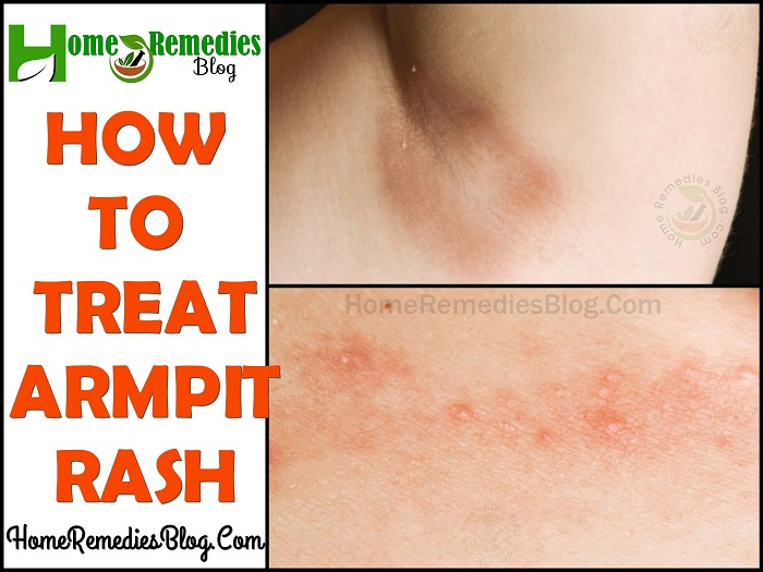 Home Remedies For Rashes Due To Sweat