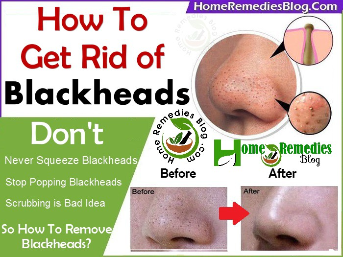 How To Get Rid Of Blackheads Using Home Remedies Home Remedies Blog