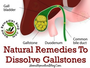 10 Best Home Remedies For Gallstones Treatment With Diet Plan