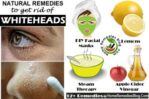 How to Get Rid of Whiteheads: Causes and Natural Remedies