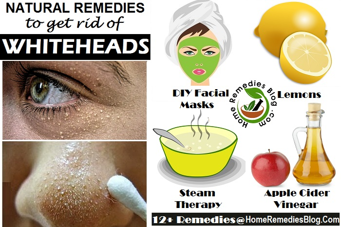 Home Remedies To Get Rid of Whiteheads Fast