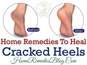 11 Fast Natural Remedies For Cracked Heels & Prevention Tips