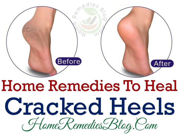 how to treat dry cracked heels at home