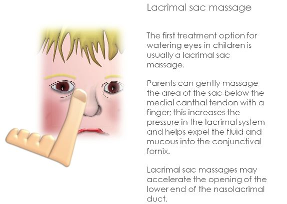 Lacrimal Sac Massage