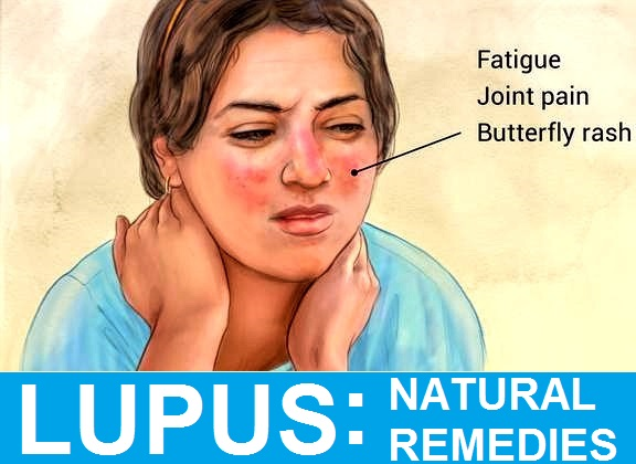 Effective Lupus Home Treatments and Diet Plan