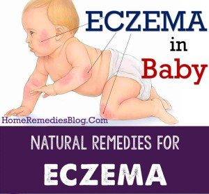 8 Healing Natural Remedies for Eczema in Babies and Best Foods
