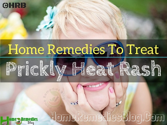 15 Effective Home Remedies To Treat Prickly Heat Rash Quickly