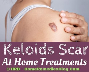 15 Proven Home Remedies to Get Rid of Keloids Naturally