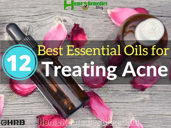 Top 12 Best Essential Oils for Acne & How to Use Correctly
