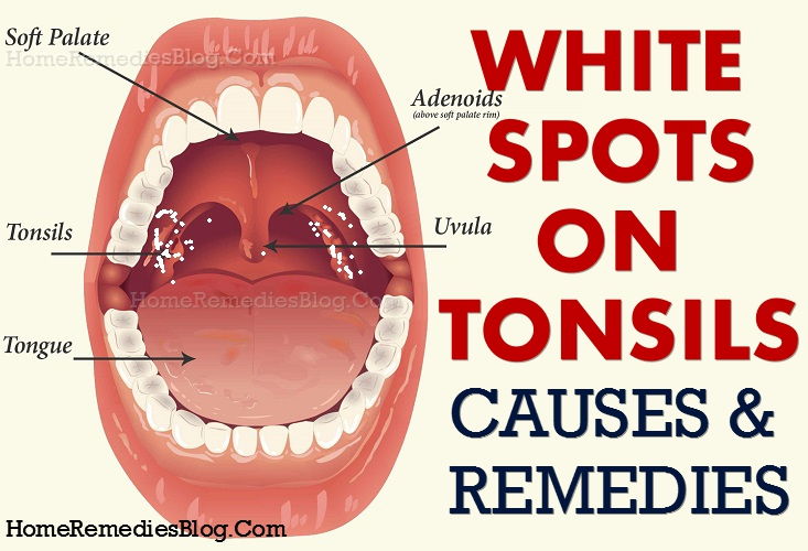 How To Get Rid Of White Spots On Tonsils Causes Home Remedies