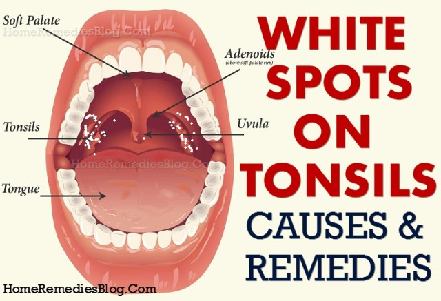 White Spots on Tonsils - Causes and Natural Treatment