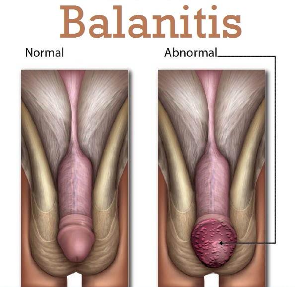 Bacterial Balanitis in Men