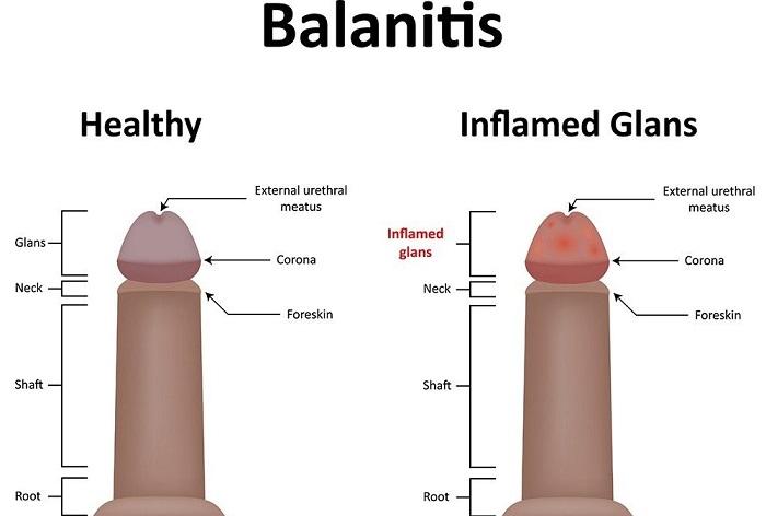 Balanitis in Men Caused by Candida