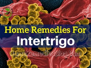 15 Home Remedies for Intertrigo (Rash in The Skin Folds)