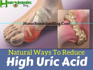 9 Proven Home Remedies to Reduce Uric Acid Naturally