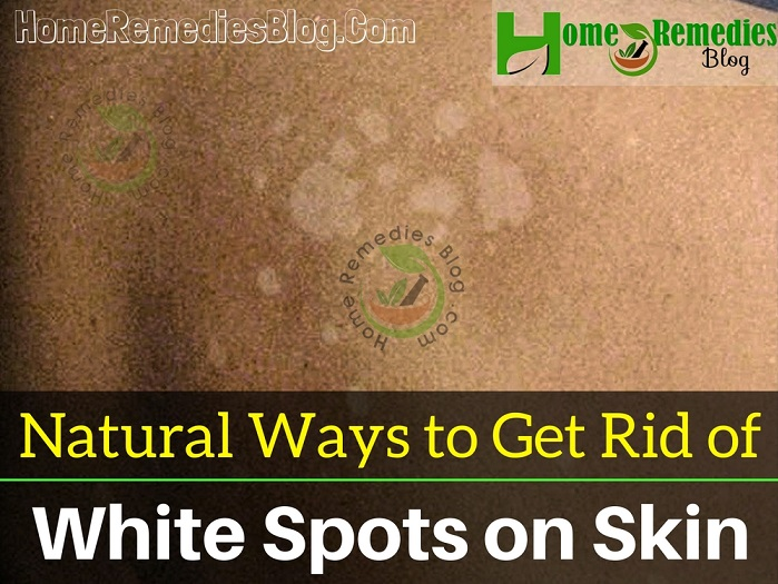 How to Get Rid of White Spots on Skin Naturally