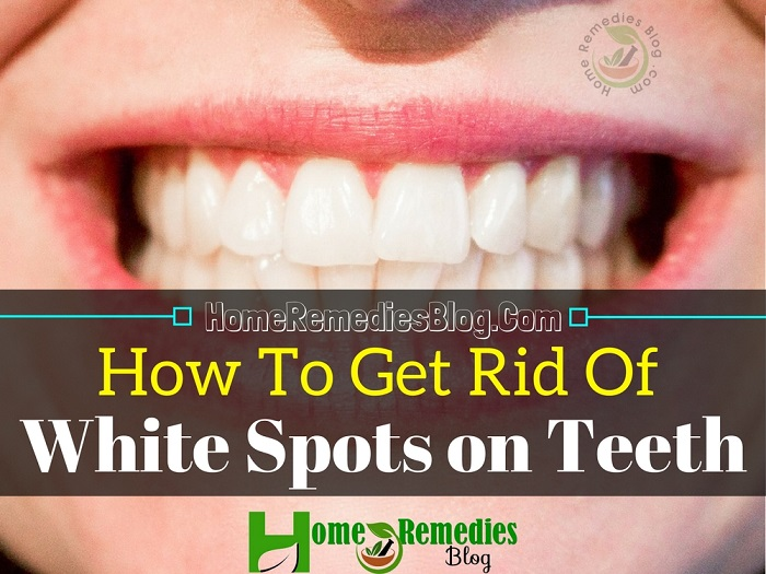 How to Get Rid of White Spots on Teeth Fast