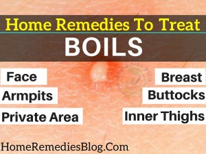 Home Remedies for Boils: 11 Ways to Treat Boils Naturally