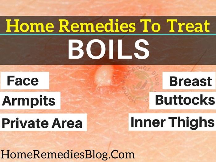 Medicine For Boils