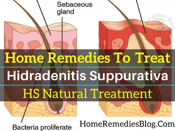 11 Natural Home Remedies for Hidradenitis Suppurativa With Diet Plan