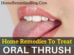 11 Proven Home Remedies To Treat Oral Thrush Naturally