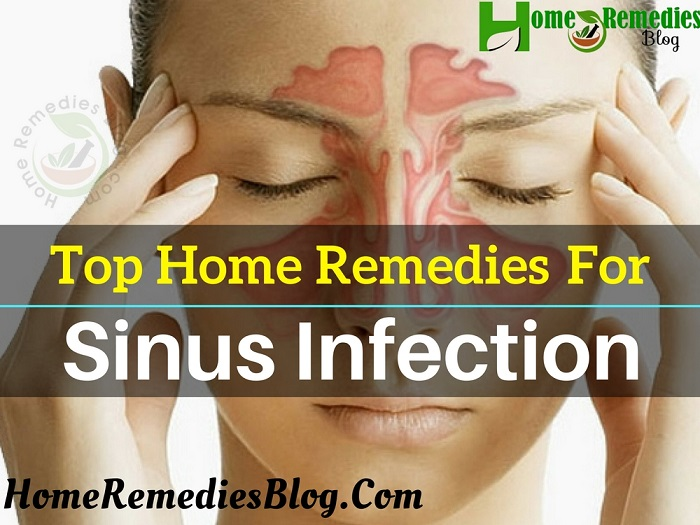 12 Best Home Remedies for Sinus Infection Treatment