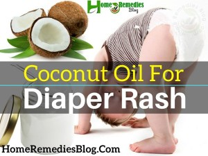 9 Best Ways to Use Coconut Oil for Diaper Rash in Babies