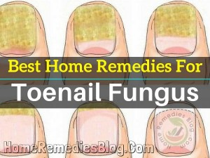 Top 12 Home Remedies for Toenail Fungus