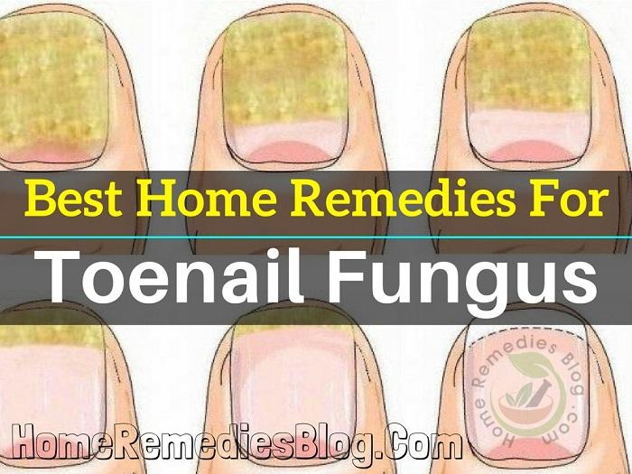 12 Best Home Remedies for Toenail Fungus - Home Remedies Blog