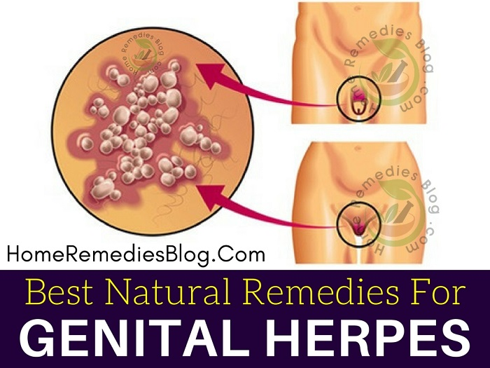 12 Best Home Remedies To Treat Genital Herpes Naturally