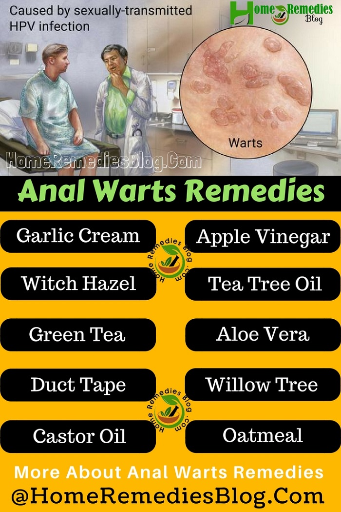 Anal Warts Home Treatment