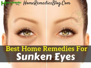 10 Best Home Remedies To Get Rid of Sunken Eyes