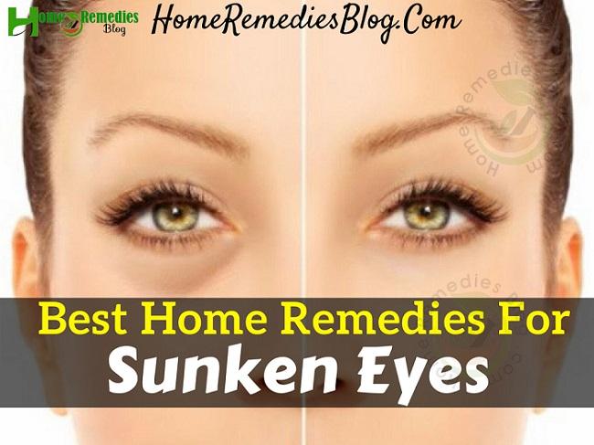 10 Best Home Remedies To Get Rid of Sunken Eyes