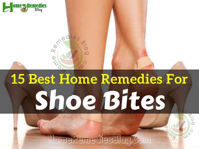 c4a3ca9ab9 15 Best Home Remedies for Shoe Bites - Home Remedies Blog