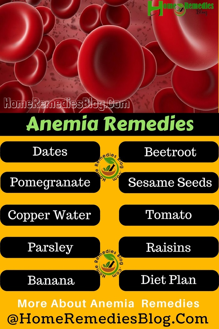 Anemia Natural Treatments Infographic