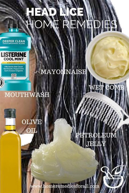 6 Home Remedies For Head Lice